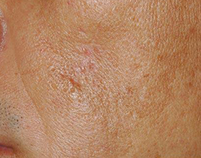 anti-aging laser treatment surgical scars after photo
