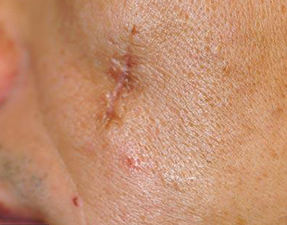 fraxel skin laser treatment for surgical scars before photo