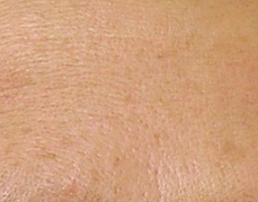 anti-aging laser treatment for fine line hydrafacial after photo