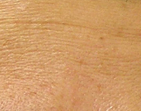 anti-aging laser treatment for fine line hydrafacial before photo