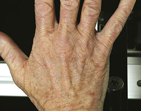 anti-aging laser treatment for hand resurfacing after photo