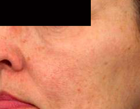 anti-aging laser treatment for skin rejuvenation before photo