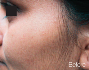 anti-aging laser treatment before