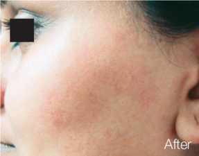 anti-aging laser treatment after