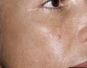 fraxel skin laser treatment for melasma after photo