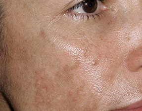 anti-aging laser treatment for melasma before photo