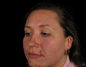 anti-aging laser treatment for chemical peel skin rejuvenation before photo