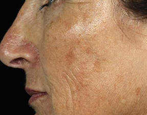 fraxel skin laser treatment for wrinkles before photo