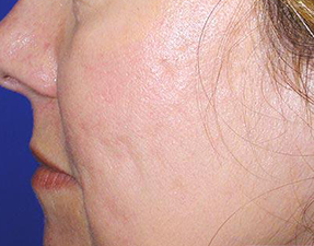 acne scar laser treatment after photo