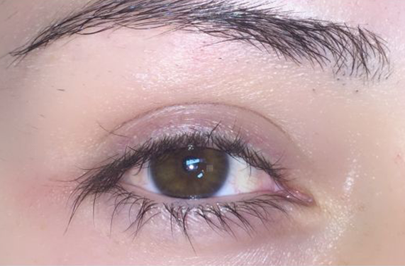 cosmetic injectables keratin lash lift before photo
