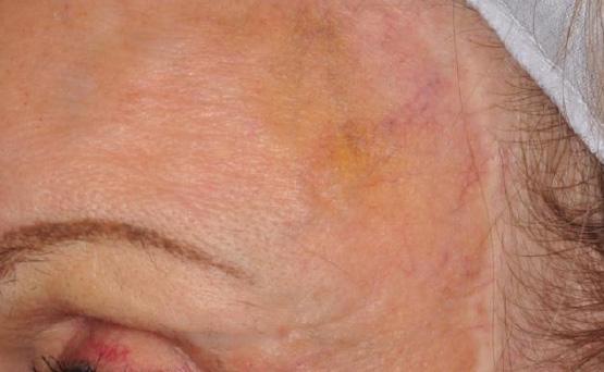 laser services spider vein removal after