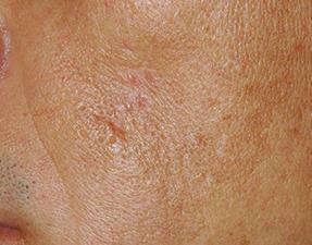 laser services wrinkles after