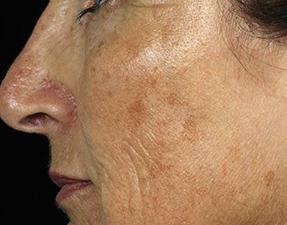 laser services wrinkles before