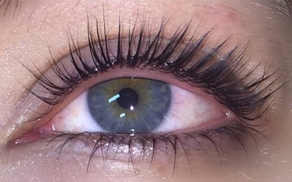 cosmetic injectables keratin lash lift after photo