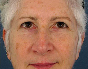 fraxel skin laser treatment for age spots before photo