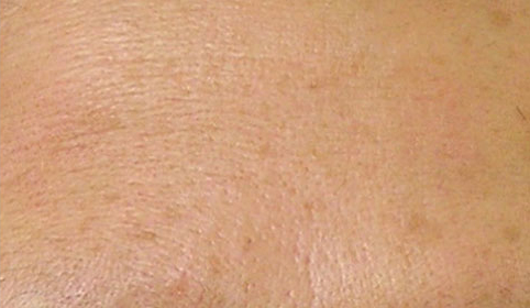 hydrafacial treatment for fine lines and wrinkles after photo