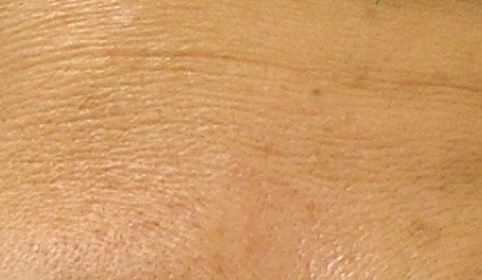 hydrafacial treatment for fine lines and wrinkles before photo