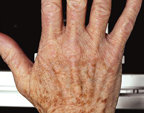 anti-aging laser treatment for hand resurfacing before