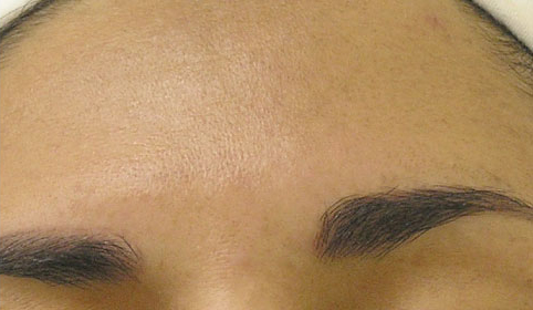 hydrafacial folds treatment for hyperpigmentation after photo