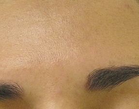 anti-aging laser treatment for hyperpigmentation hydrafacial after photo