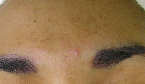 hydrafacial folds treatment for hyperpigmentation before photo