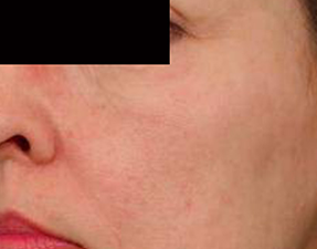 anti-aging laser treatment for skin rejuvenation after photo