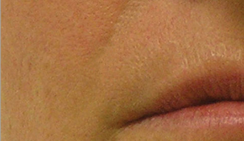 hydrafacial folds treatment for nasolabial folds after photo