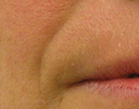 anti-aging laser treatment for nasolabial hydrafacial before photo