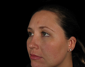 anti-aging laser treatment for chemical peel skin rejuvenation after photo
