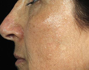 anti-aging laser treatment for wrinkles after photo