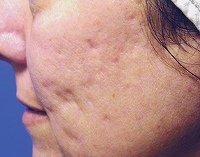 acne scar laser treatment before photo