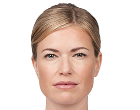 cosmetic injectable botox treatments after photo