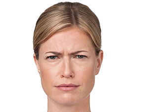cosmetic injectable botox treatments before photo