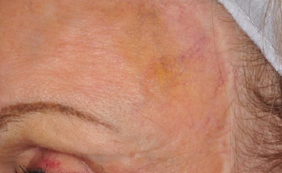 laser services spider vein removal after