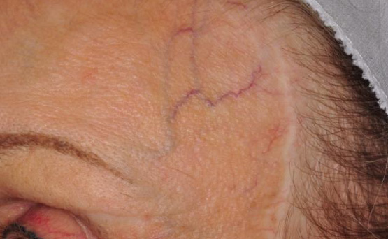 laser services spider vein removal before