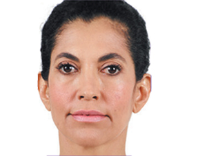 front-before-juvederm-1